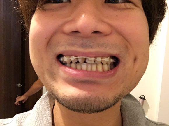 歯並びと矯正器具