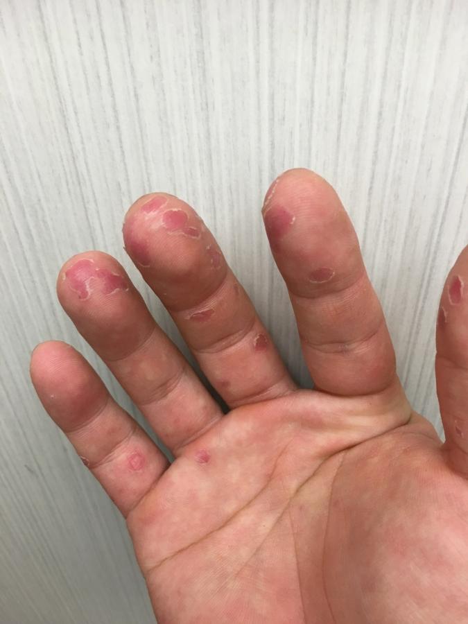 大人の手足口病 皮