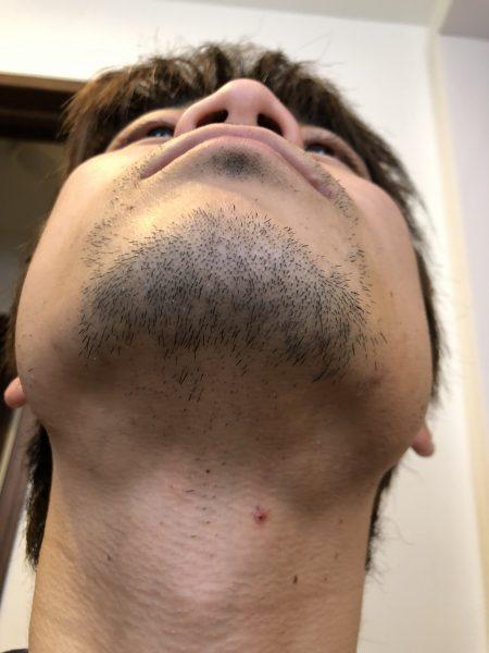 ヒゲ脱毛前の写真 アゴアップ