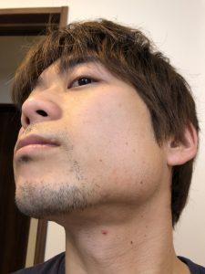 ヒゲ脱毛前の写真 横顔アップ